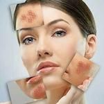 Foods, which are harmful to your skin | HealthMedia