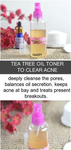TEA TREE OIL TONER TO CLEAR ACNE
