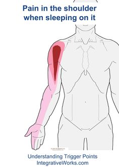 Watch This Video Extraordinary Home Remedies for Arthritis Joint Pain Ideas. Exhilarating Home Remedies for Arthritis & Joint Pain Ideas. Shoulder Pain Relief, Shoulder Joint, Neck And Shoulder Pain, Shoulder Muscles, Neck Pain, Shoulder Arthritis, Shoulder Surgery, Sore Shoulder, Yoga