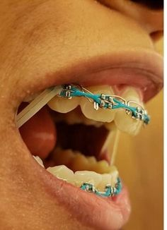 #braces #girlswithbraces #metalbraces #powerchain #elastics Cute Braces Colors, Cute Girls With Braces, Braces Tips, Brace Face, Teeth Braces, Rubber Bands, Hairstyles, Unique, Kids