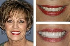 keep your teeth shine like diamond by using our teeth whitening services in green ville. we use the coloured filling material to shine the whitening of your teeth. Cosmetic Dentistry Procedures, Dental Procedures, Veneers Teeth, Dental Veneers, Dental Hygiene, Dental Care, Dental Bonding, Laser Dentistry, Porcelain Veneers