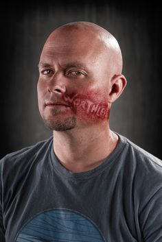 """What if verbal abuse left the same scars as physical abuse? Would it be taken more seriously? That's what photographer Richard Johnson hopes to accomplish with his new photo project, """"Weapons of Choice."""" The series uses a makeup artist to put bruises and scars on photo subjects. Embedded in these violent marks are some hateful words typically associated with abuse, such as """"Stupid,"""" """"Dumb,"""" """"Trash"""" and others that are much, much worse."""