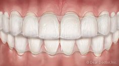 Adolescent Orthodontics Treatment Straightens New Permanent Teeth. We Offer Multiple Treatment Options Including Braces For Adolescents. Types Of Braces, Clear Aligners, Orthodontics, Adolescence, Teeth