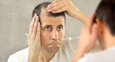 Welche Haartypen sind ideal für die Haartransplantation? Beachten Sie diese nach der Haartransplantation!