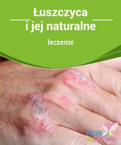 Łuszczyca i jej #naturalne leczenie  #Łuszczyca jest przewlekłą chorobą skóry, która charakteryzuje się #występowaniem na skórze łuszczących się plam i wykwitów. Niejednokrotnie towarzyszy temu ból, uczucie ciepła i zaczerwienienie. U #każdego zdrowego #człowieka nowe komórki skóry powstają w głębokich warstwach, powoli przesuwając się do góry, jednocześnie, stare i martwe są usuwane.