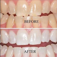 Ultimate Value! Enough Gel to Keep your Teeth White up to 24 Months!• X 4 High Quality Extra Strength Whitening Gels (Dental Grade)• Professional EU Regulated