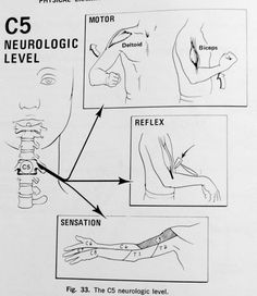 Neck, Shoulder & Arm Pain Shoulder Arms, Neck And Shoulder Pain, Neck Pain, Acupuncture For Weight Loss, Acupuncture Points, Nervous System Anatomy, Examen Clinique, Radiculopathy, Spine Health