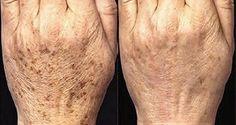 Normalmente, as manchas que aparecem com a idade localizam-se nos ombros, rosto, mãos e outras partes da pele, especialmente aquelas expostas ao sol.  Essas manchas aparecem em adultos com