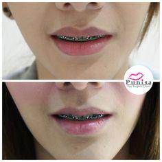 #Punisaclinic #ศัลยกรรม #ปาก #ศัลยกรรมปาก #ปากบาง #ปากกระจับ #ปากปีกนก  #Beauty #Number1 #Lips #LipReduction #LipSurgery #Professional #Lip #Reduction #Surgery #Thailand #plasticsurgery #lipreductionsurgery #thailand #doctorthinlips#Punisaclinic #lipsurgery #lipreduction#lipreductionsurgery #asianlips #plasticsurgeons#plasticsurgery #Thailandsurgery Lip Surgery, Septum Ring, Lips, Jewelry, Jewlery, Jewerly, Schmuck, Jewels, Jewelery