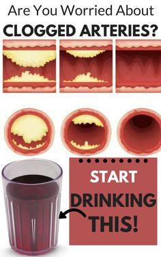 Are You Worried About Clogged Arteries? Start Drinking This!