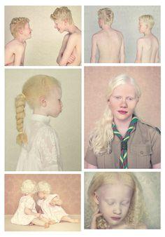 """Albinos"" Gustavo Lacerda (2009-2012)"