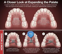 How palatal expanders work