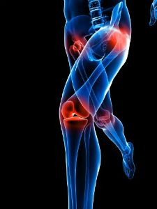 Can Long-term Running Impact Joint Health? What the Science Says About the Risk of Osteoarthritis from Running Training For A 10k, Running Training, Cross Training, Running Workouts, Running Tips, Health Research, Knee Injury, Forever Living Products, Running Motivation