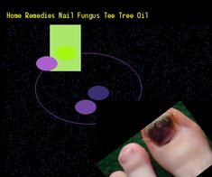 Home remedies nail fungus tee tree oil - Nail Fungus Remedy. You have nothing to lose! Visit Site Now