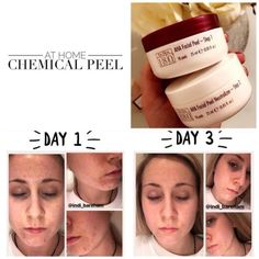 Home Microdermabrasion, Alpha Hydroxy Acid, Layers Of Skin, Chemical Peel, Beauty Skin, Beauty Box, Acne Skin, Skin Tips, Hair Beauty