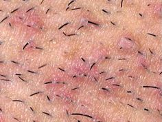 How To Remove the Ingrown Hairs
