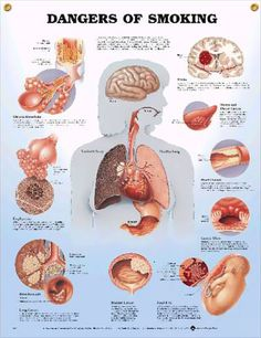 Dangers of Smoking Anatomical Chart in Spanish (Peligros del tabaquismo) , Anatomical Chart Company, Lippincott Williams & Wilkins; Quit Smoking Tips, Giving Up Smoking, Anti Smoking, Respiratory Therapy, Respiratory System, Health And Nutrition, Health And Wellness, Mental Health, Health Class