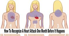 How to Spot a Heart Attack 1 Month Before It Occurs