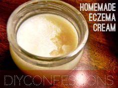 DIY Skin Care Recipes : How To Make A Home-Made Eczema Cream And Skin Moisturizer #EczemaMoisturizer