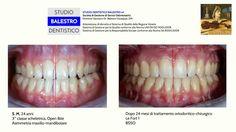 Casi clinici ortodontici Chirurgia ortognatica http://www.studiodentisticobalestro.com/2017/09/chirurgia-ortognatica.html