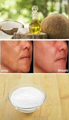 Quitar manchas, acné, cicatrices bicarbonato y aceite de coco