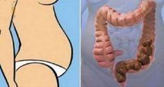 En ayunas solo 1 cucharada de esto puede vaciar sus intestinos en 2 minutos hasta la caca acumulada en 7 días