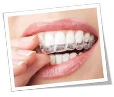 Clear Retainers, Braces, Dentistry, Mistakes, Wordpress, Chicago, Knowledge, Smile, Box