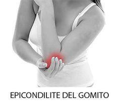 Epicondilite del gomito