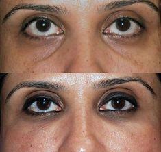 Sunken Eyes Causes, Sunken Eyes Treatment, Sunken Eyes, Eyes Dark Circles, Sunke… - Under Eye Makeup, Under Eye Concealer, Dark Circles Under Eyes, Eye Circles, Sunken Eyes, Healthy Eyes, Eye Treatment, Puffy Eyes, Eye Make Up