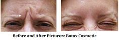 Hey great news Botox is now used for all the wrinkles and aging issues of yours. At Look Younger MD in Henderson and Las Vegas all the Botox treatment are effectively offered.