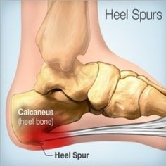NATURAL CURE FOR HEEL SPURS