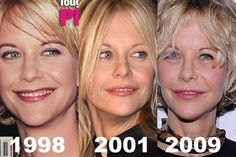 Meg Ryan Plastic Surgery Gone Wrong