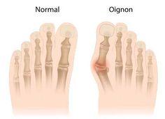 remèdes oignon pieds
