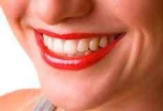 Un sorriso perfetto? Merito del #dentista
