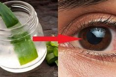 This being said, in today's article, we decided to present you a powerful recipe for an eyesight medicine that is based on aloe vera that will Best Eczema Treatment, Blueberry Juice, Eye Sight Improvement, Vision Eye, Hydroponics System, Aquaponics Greenhouse, Aquaponics Plants, First Aid Only, Health
