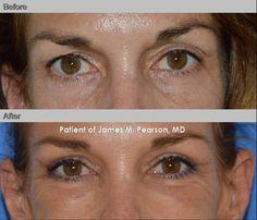 Facial Rejuvenation: Upper Eyelid Lift / Upper Blepharoplasty Performed by Dr. James M. Pearson, MD #PearsonMD #DrJamesPearson #DrJamesPearsonFacialPlasticSurgery #PlasticSurgery #FacialPlasticSurgery