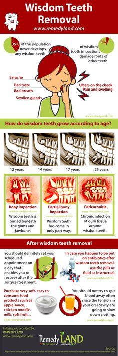 Wisdom teeth, or third molars, are the final tooth to develop and appear in your mouth. In certain cases these types of teeth could be a helpful for mouth if there are healthful and properly in line, however more often, they are in fact misaligned and demand removal.