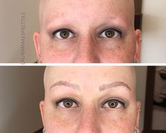 Microbladed brows for alopecia totalis. Beautiful work!
