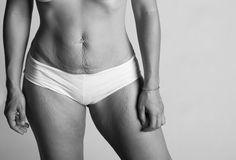 'A Beautiful Body Project' y la historia de tu cuerpo | A cara lavada - Yahoo! Mujer