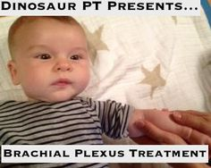 Brachial Plexus Injury Treatment in Children; Exercise and Activity Recommendations for children with Brachial Plexus Injury; Pediatric Physical Therapy