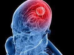 Tumore al cervello: scenziati italiani svelano il meccanismo di crescita delle cellule tumorali