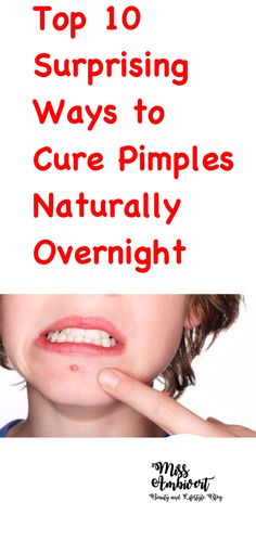 Pimples are tender red bumps with white puss inside. Oily skin, hormones and dirt are common causes of pimples. These bumps can be easily treated with the help of these 10 simple home remedies for curing pimples overnight. Dry Out Pimples, Pimples On Chin, Pimples On Forehead, Home Remedies For Pimples, How To Get Rid Of Pimples, Acne Remedies, How To Treat Pimples, Overnight Remedies For Pimples, Cure For Pimples