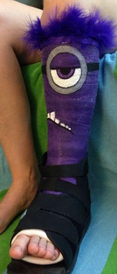 Glad I've not broken my ankle, but if I had, totally would have done this! Evil minion cast painting!