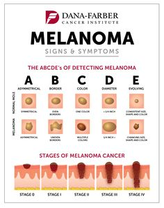 May is Skin Cancer Awareness Month. Do you know what an abnormal mole looks like? Learn more about melanoma detection and what to look out for. Source by DFCI Cancerous Moles, Dermatology Nurse, Skin Cancer Treatment, Basal Cell Carcinoma, Abdominal Pain, Cancer Sign, Cancer Awareness, Instagram, Infographics