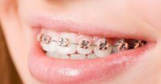 Khám phá ưu và nhược điểm của niềng răng thẩm mỹ