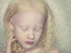 Hauntingly Beautiful Photographs Of People With Albinism 'Put Outsiders In The…