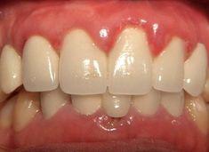 Viêm lợi sau khi bọc răng sứ có thể phòng tránh được không? - Bọc răng sứ thẩm mỹ