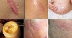 Les cicatrices sont des taches cutanées permanentes. Il y a beaucoup de traitements, y compris la chirurgie pour corriger les cicatrices. Mais si vous êtes quelqu'un qui aime essayer des traitements naturels, ici nous recommandons un traitement naturel incroyable, qui est facile à préparer et offre beaucoup d'avantages. INGRÉDIENTS: Un quart de beurre de cacao …