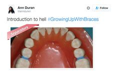 When they put spacers in and it felt like your teeth were giving birth: | 21 Tweets That People Who Grew Up Wearing Braces Will Find Painfully True