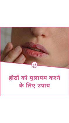 #WartsOnHands Good Health Tips, Natural Health Tips, Health And Beauty Tips, Warts On Hands, Warts On Face, Get Rid Of Warts, Remove Warts, Flat Warts, Beauty Tips Home Remedy